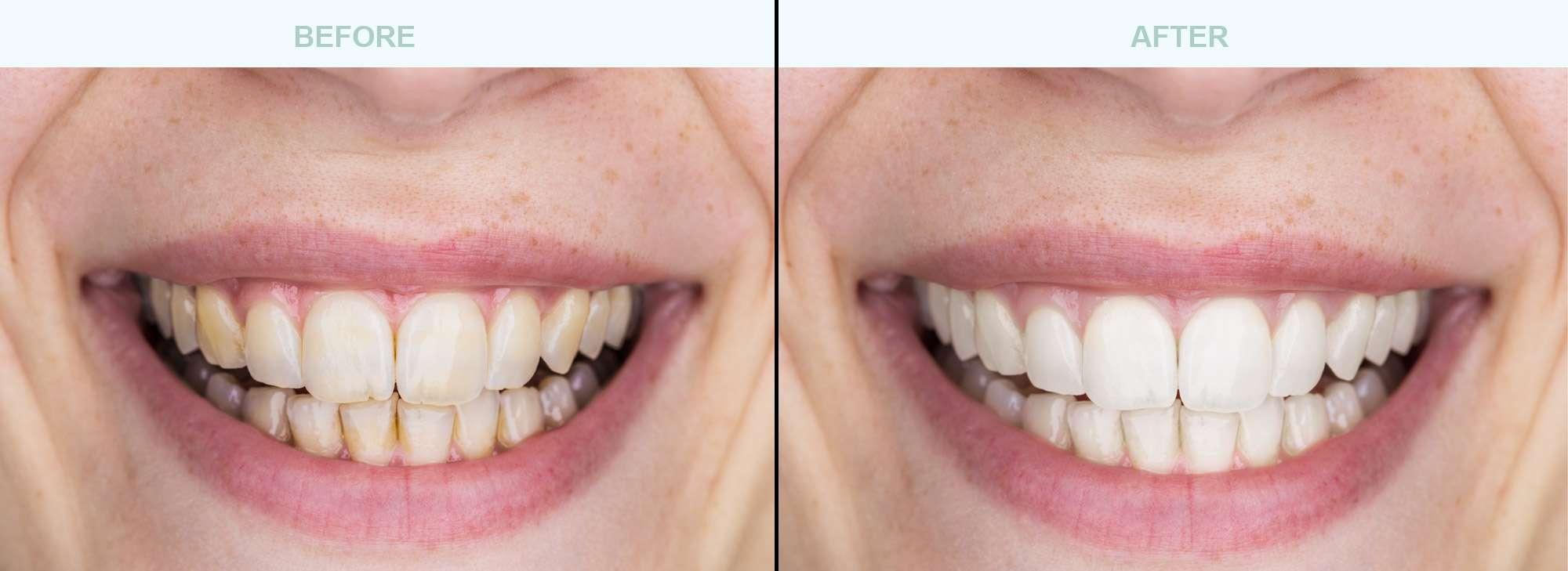 Dental-Cleaning-before-after