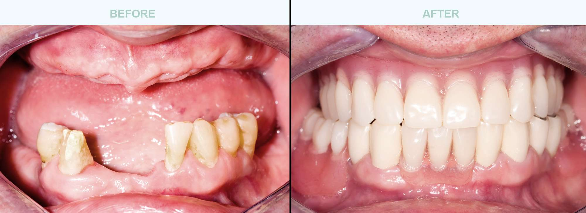 Dental-Implants-before-after