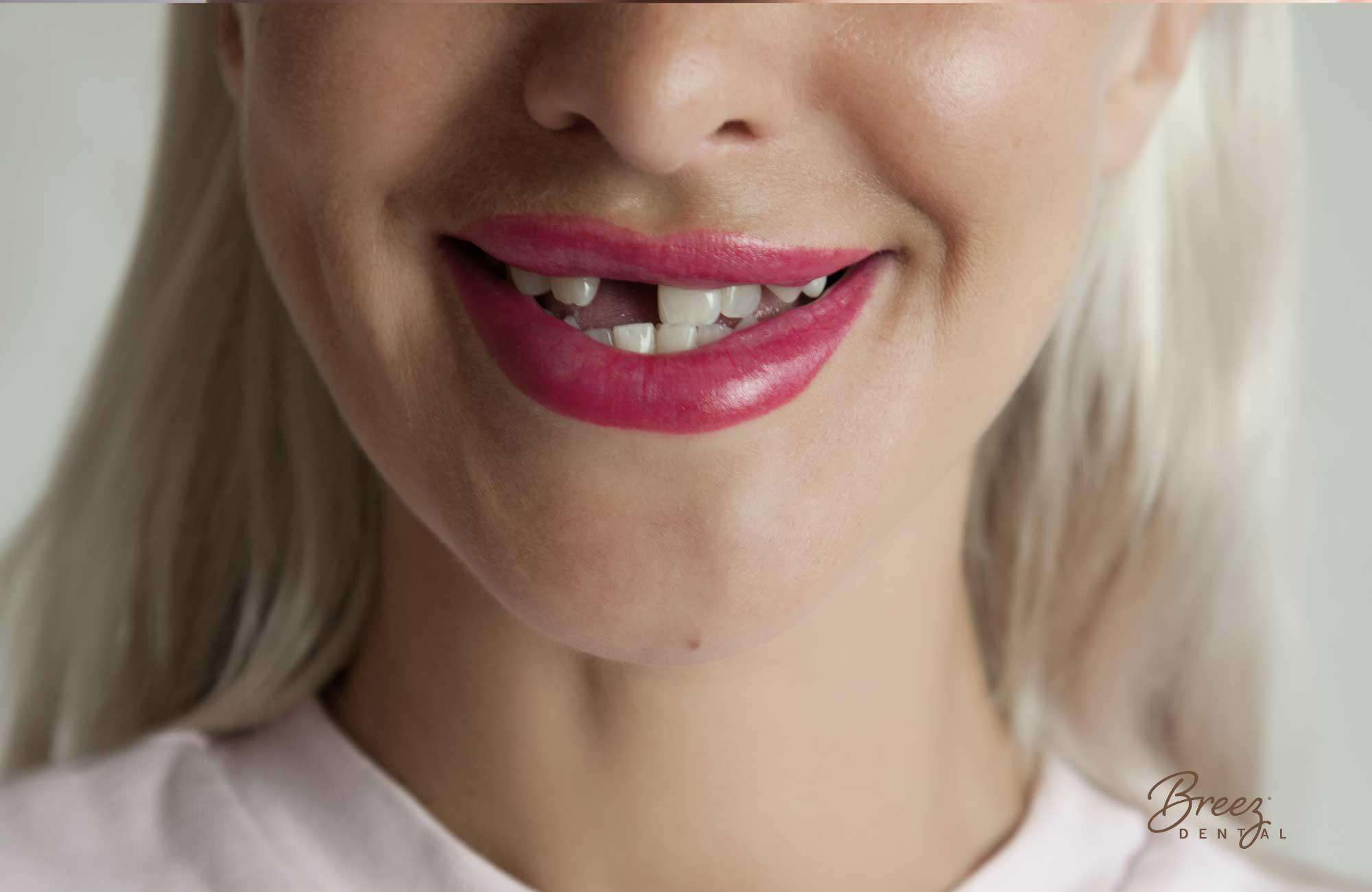 Missing-Teeth-Problems-They-Might-Surprise-You