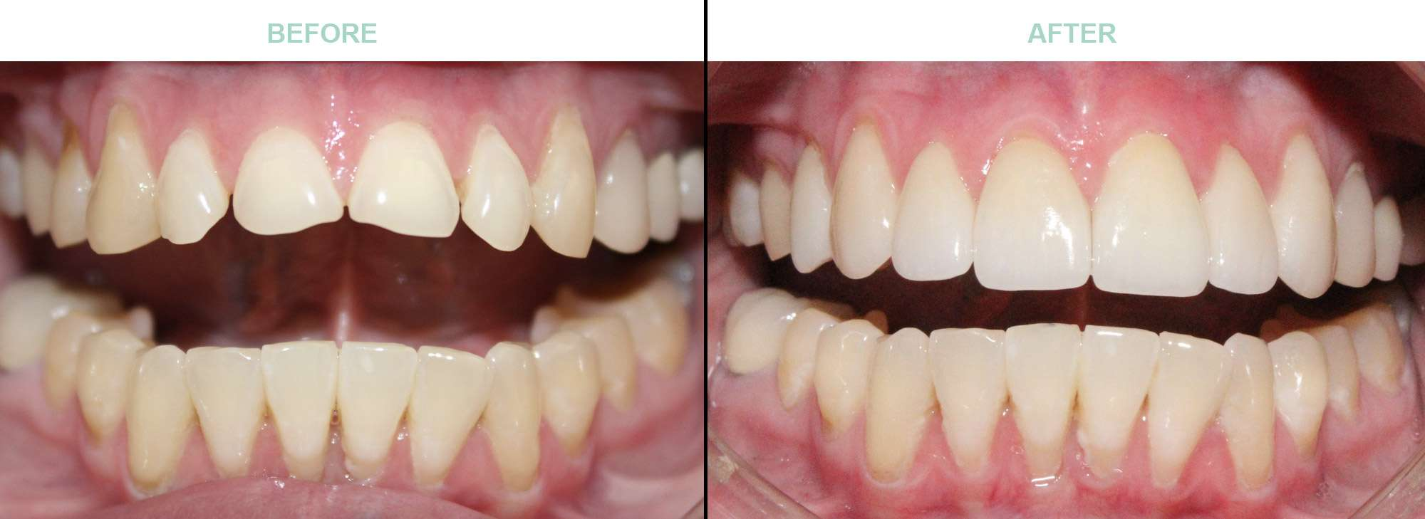 before-after-cosmetic-dentistry-glendale-az