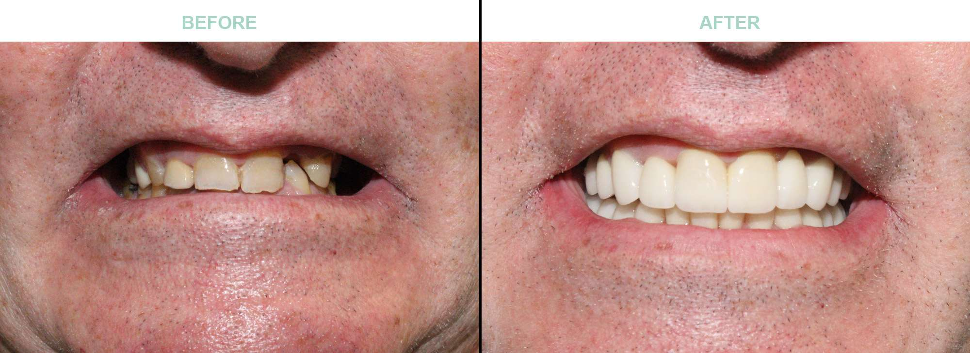 before-after-cosmetic-dentistry-suncity-az