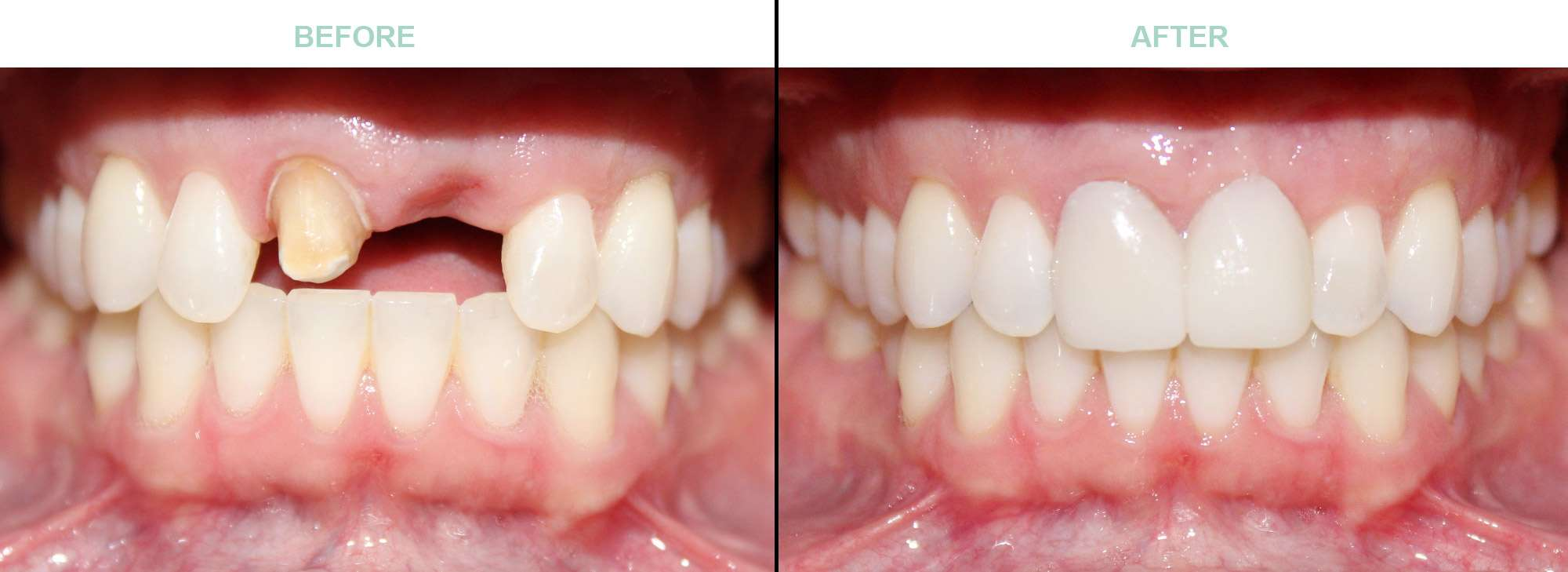 before-after-cosmetic-dentistry-surprise-az