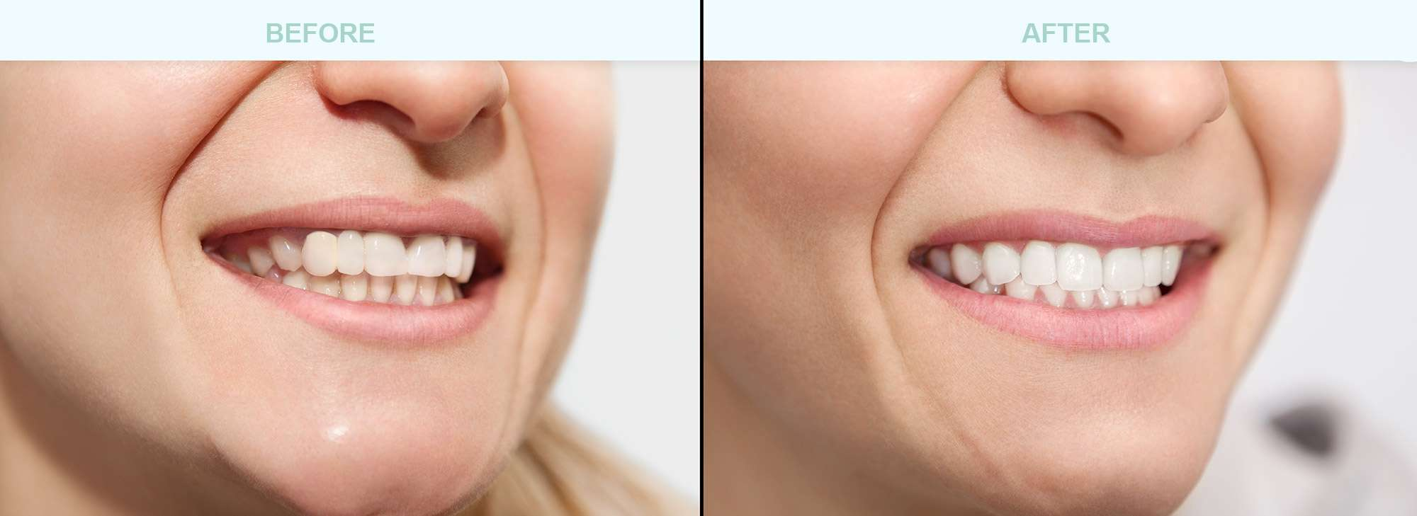 before-after-cosmetic-dentistry