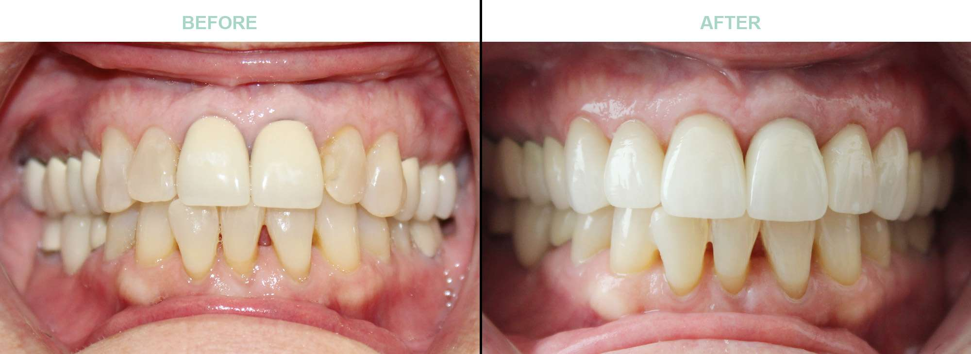 Before and After Smile Gallery - Veneers and Crowns - Surprise AZ Dentistry