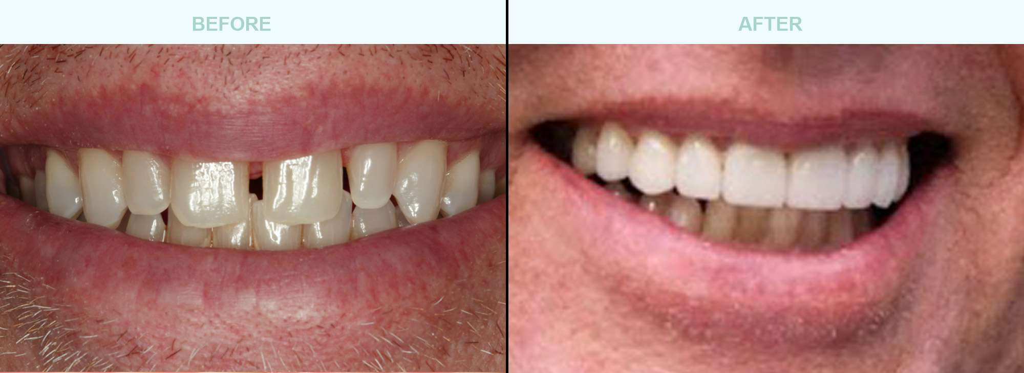 cosmetic-dentistry-before-after
